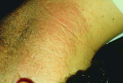 allergic contact dermatitis