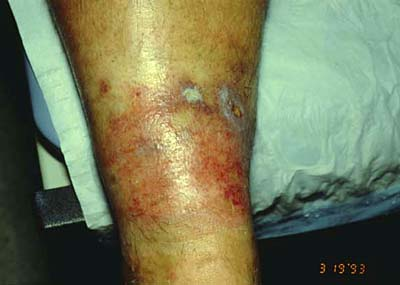 chronic ulcerations and allergic contact dermatitis