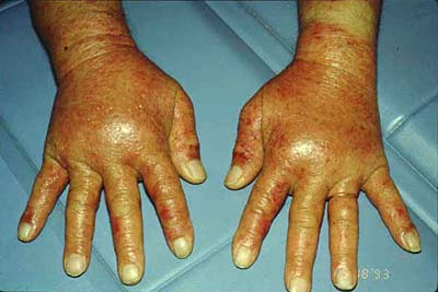 allergic contact dermatitis to topical steroids